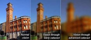 vision with cataracts